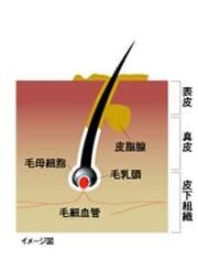 シャンプー前の頭皮(イメージ図)